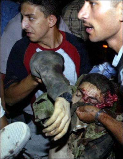 palestine-victim